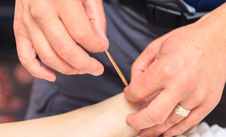 3 Amazing Health Benefits of Japanese Acupuncture that Are Backed by Science